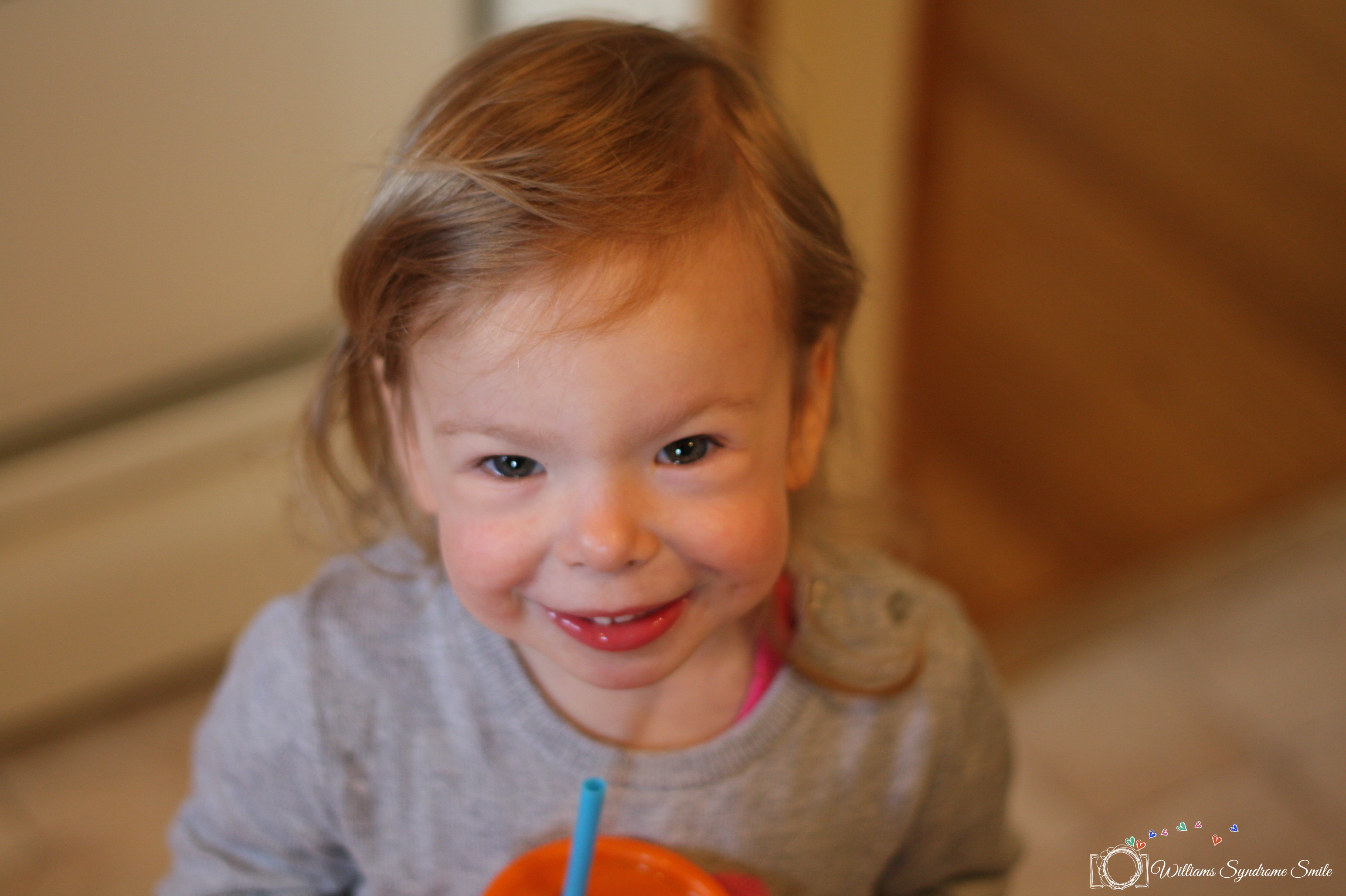 To the Newly Diagnosed | Williams Syndrome Smile